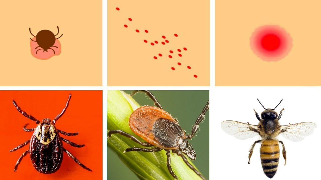 Ce ne înţeapă? O aplicaţie românească te poate ajuta la identificarea insectelor periculoase