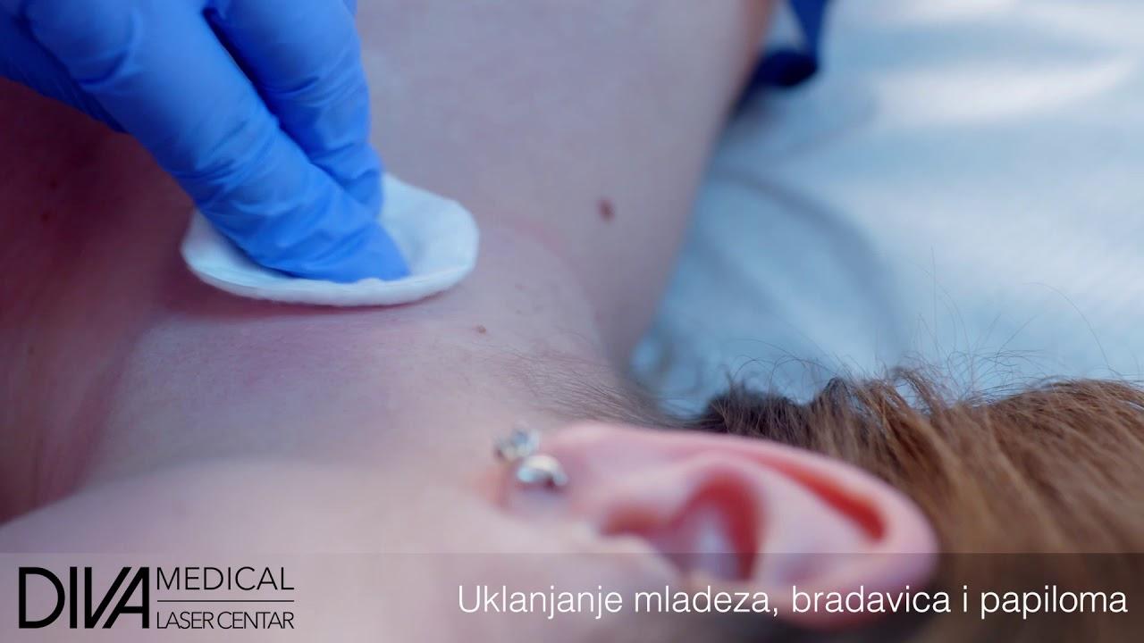 tratamentul chirurgical al condilomului cancer de prostata unicamp