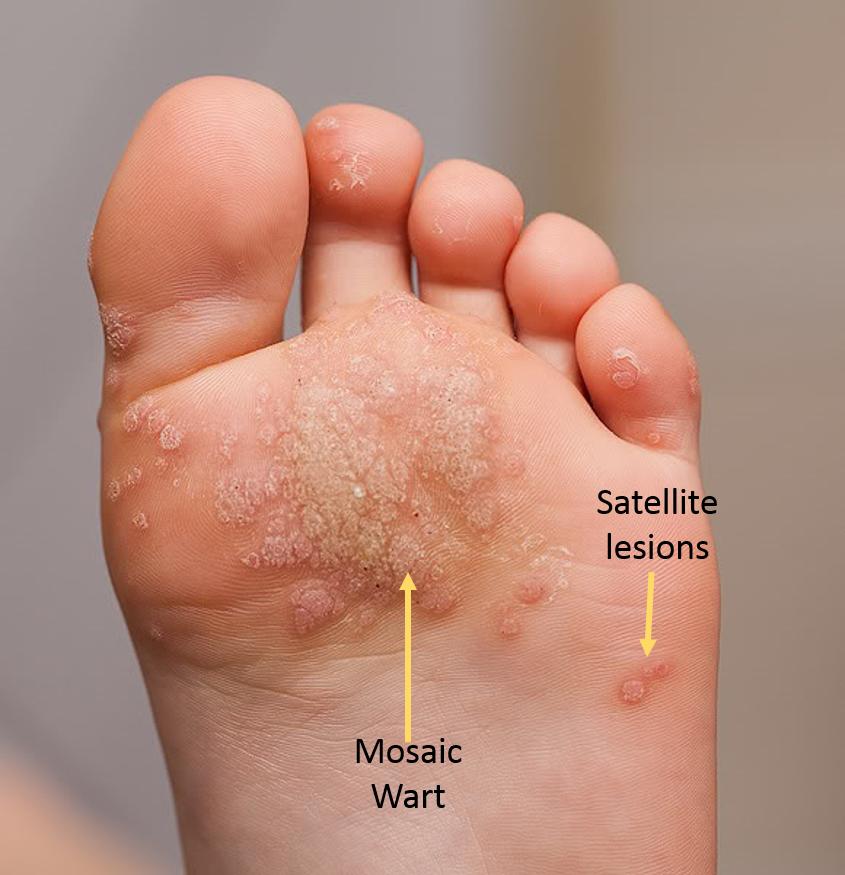 warts on foot multiplying panacur giardia bijwerkingen
